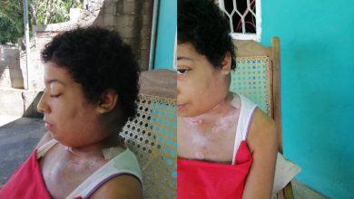 Photo of Julieth, la joven madre que avanza un paso contra el cáncer y retrocede tres