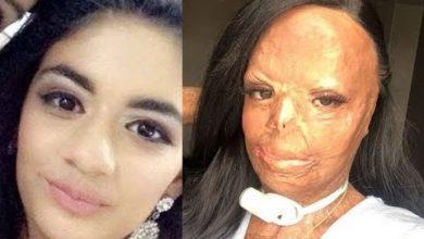 Photo of La historia de joven que se quemó la cara al usar champú para piojos