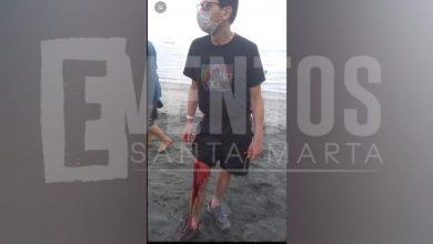 Photo of Por atracarlo, apuñalan a un hombre en playa de Pozos Colorados