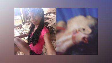 Photo of Hombre intentó matar a 'Shakira' cortándole el rostro